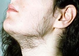 почему растут волосы +на подбородке +у женщин