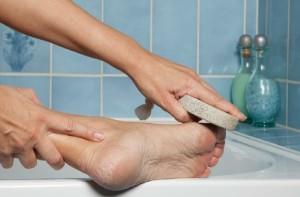 как лечить мозоли на ногах от обуви