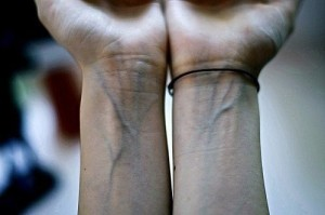 почему видно вены на руках